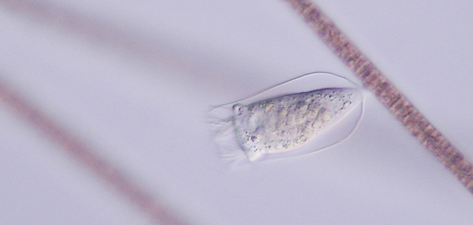 Peritrichia auf Planktothrix